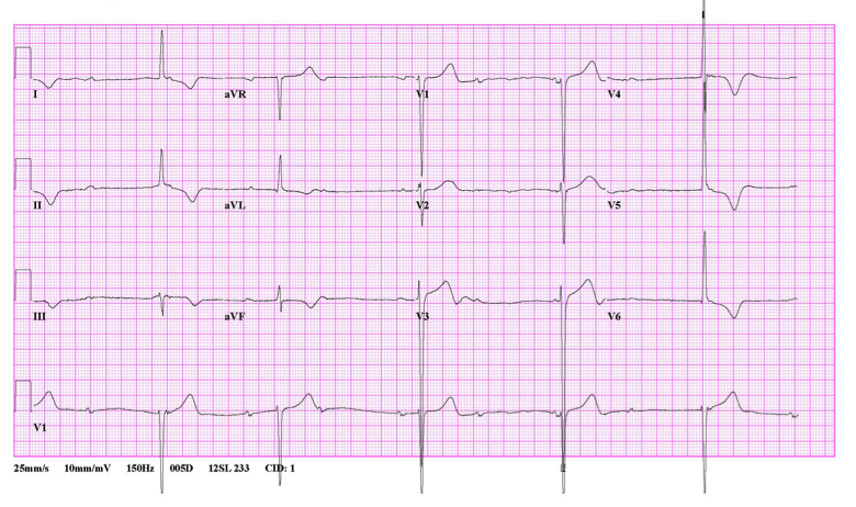 pacemaker9