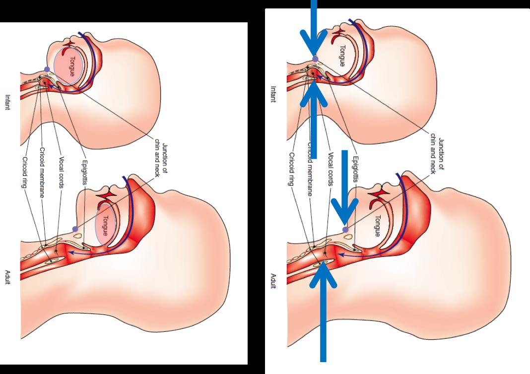 Pediatric Intubations – USC EM Education